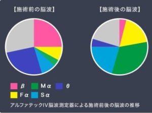 脳波検査結果グラフ